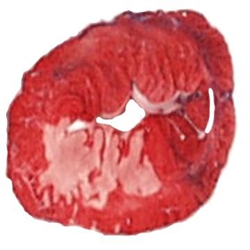 MRI Myocardium Hypothermie