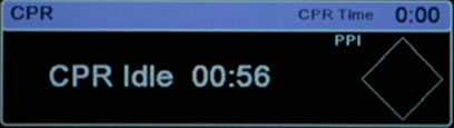 Timer di inattività RCP X Series